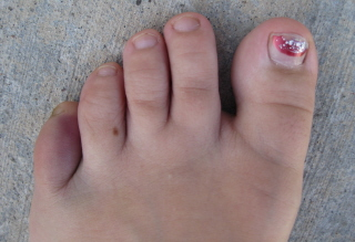 broken toe Homeschool Vacation Adventures!